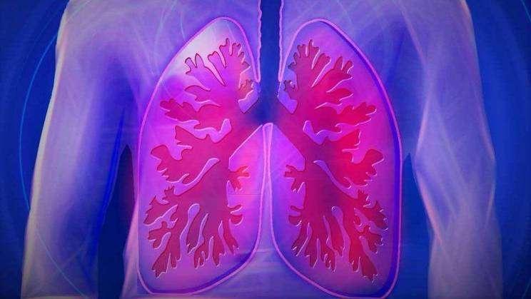 zajawka płuca